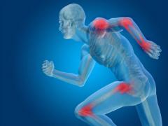 deformácia kĺbov