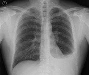 fluidothorax