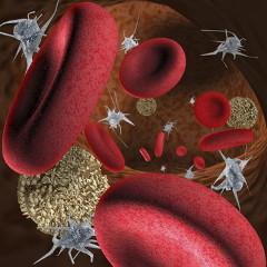 DIC - diseminovaná intravaskulárna koagulopatia