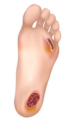 Diabetická noha