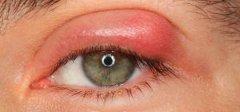 opuch očného viečka