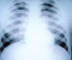 Exogénna alergická alveolitída