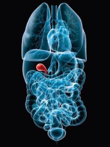 Rakovina žlčníka