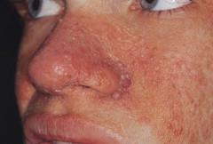 Tuberózna skleróza