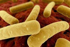 Klostridiálne infekcie