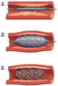 Fibromuskulárna dysplázia