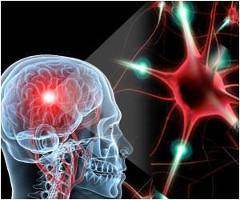Progresívna multifokálna leukoencefalopatia