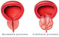Zúženie močovej trubice