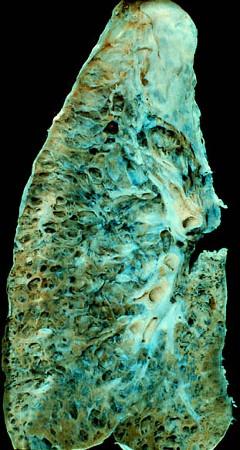 Pľúcna fibróza