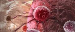 bunka nádoru