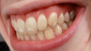 Biele škvrny na zuboch