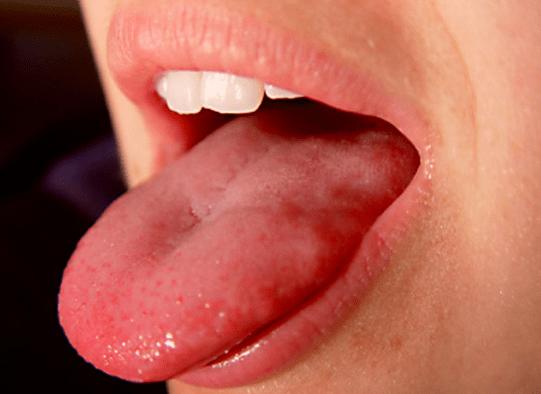 Začervenanie jazyka a podnebia